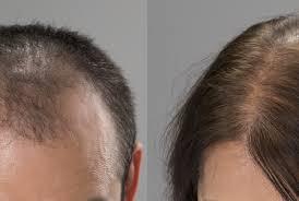 毛髪(男性型脱毛症)と男性ホルモンの関係~豊橋 薄毛育毛専門Harenohi~